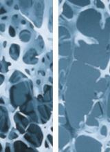 L'ostéoporose en questions-réponses