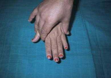 Diagnostic précoce de la polyarthrite rhumatoïde